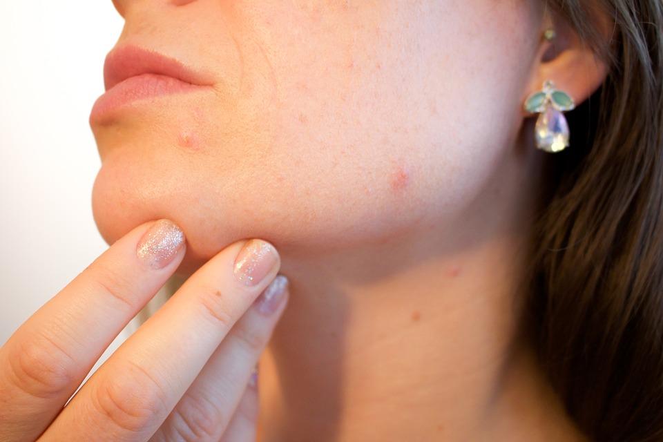 cbd for acne