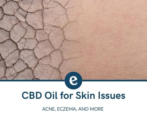 CBD oil for skin issues